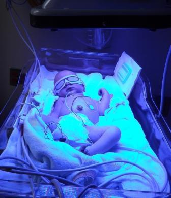 05 NICU Borg Baby bili lights